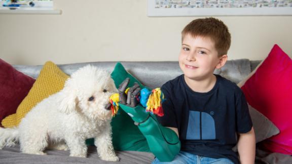 Freddie Payne, 8, received his new Hero Arm last week.