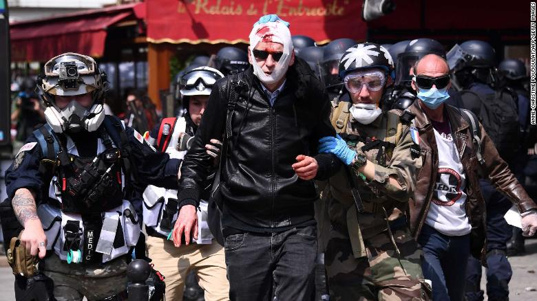 An injured protester is assisted by street medics prior to the start of the annual rally.