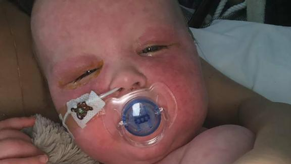 Alba received doses of vitamin A so she wouldn't go blind, a complication of measles.