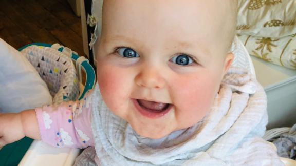 Alba Moss was 11 months old, too young to be vaccinated, when she came down with measles.