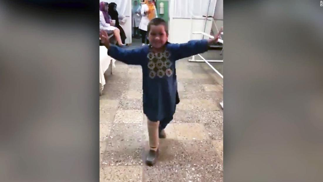 Boy who lost his leg dances again and goes viral