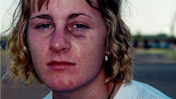 Harmony Allen one week after her rape on September 4, 2000, on Sheppard Air Force Base in Texas. She had previously worn makeup to hide her injuries; for this photo, she was asked to wash her face.