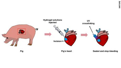 A diagram of how researchers used adhesive hemostatic hydrogel for the repair of arterial and heart bleeds in pigs.