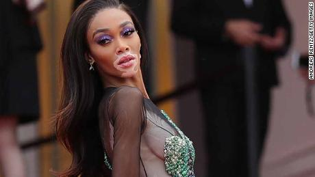 "CANNES, FRANCE - MAY 22: Winnie Harlow attends the screening of ""Oh Mercy! (Roubaix, une Lumiere)"" during the 72nd annual Cannes Film Festival on May 22, 2019 in Cannes, France. (Photo by Andreas Rentz/Getty Images)"