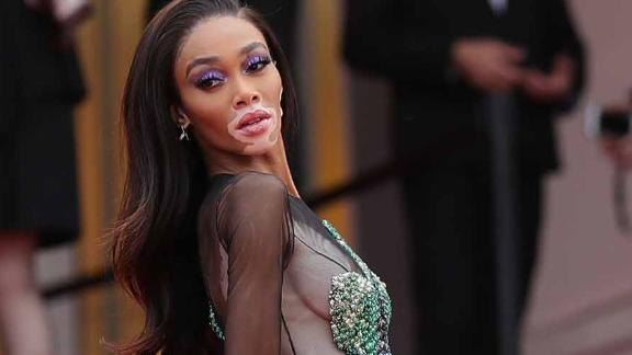 """Winnie Harlow wears a Ralph & Russo to the premiere of """"Oh Mercy! (Roubaix, Une Lumiere)."""""""
