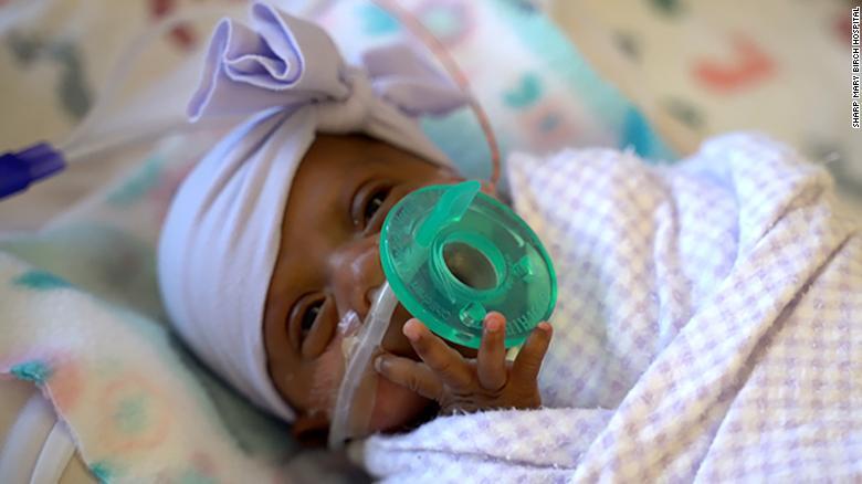 World's smallest baby leaves hospital