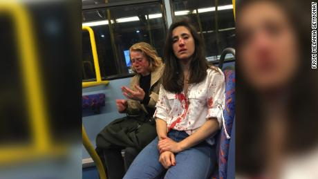 Lesbian couple viciously beaten in homophobic attack on London bus