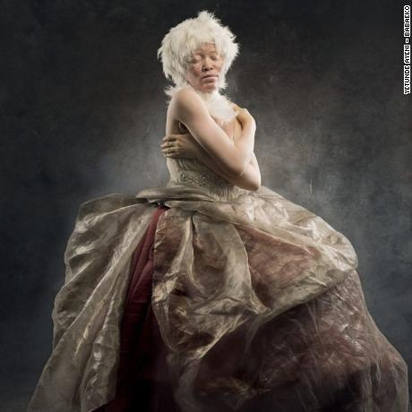 Hamzat Kabira is shown happy and thriving in her albinism. Kabira says she feels special and has fully embraced her skin.