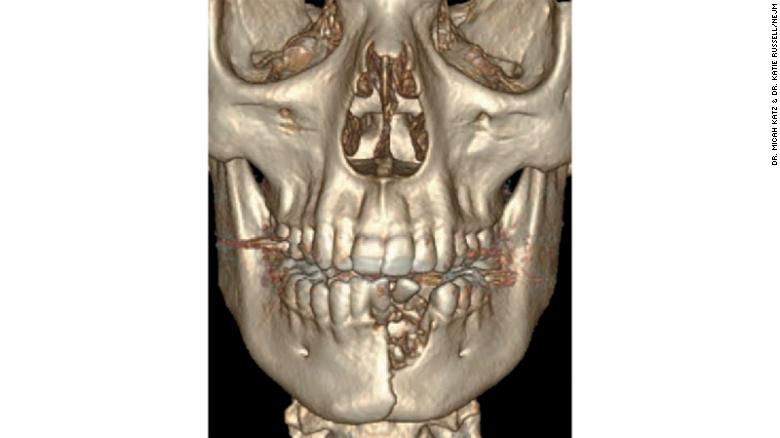 A CT scan of the 17-year-old boy, featuring his shattered jaw and displaced teeth.