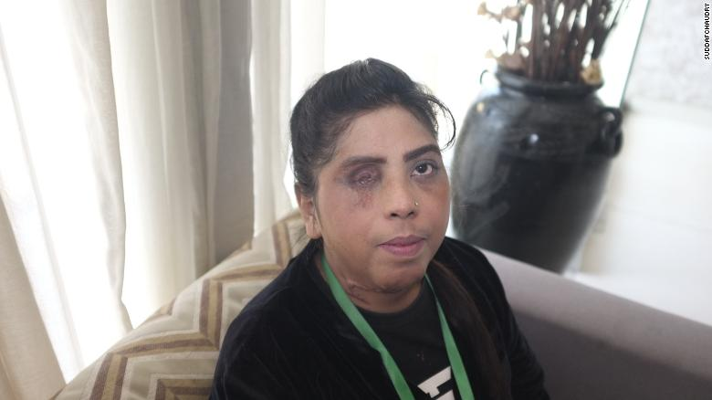 Josephine Barkat was only four years old when she was attacked with acid. She lost her eye and was burned from the neck down.