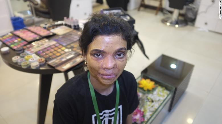 Salma Arif endured painful skin grafts. She was three years old when she was attacked with acid.