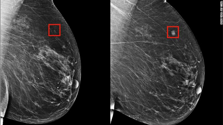 An algorithm, developed by MIT researchers, could identify a woman's risk of breast cancer and help to catch it early