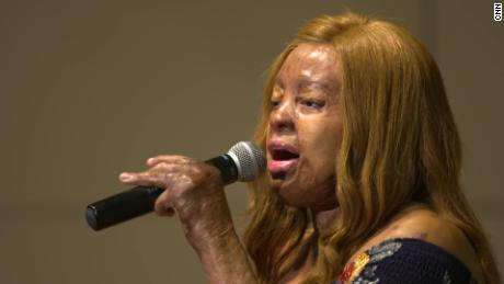 "After appearing on ""America's Got Talent,"" Kechi began performing all over the world."