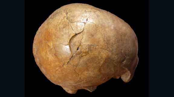A 33,000-year-old human skull shows evidence of being struck with a club-like object. The right side of the man