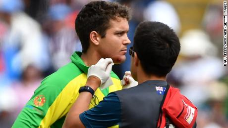 Alex Carey receives medical attention after being hit by a ball off the bowling of Jofra Archer.