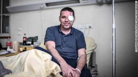David Breidenstein says one of his great regrets is that his eye injury has kept him from protesting. He will be back on the streets on Bastille Day.