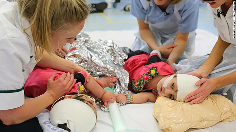 Conjoined twins Safa and Marwa are recovering well after complex surgery at London's Great Ormond Street Hospital.