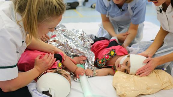 Conjoined twins Safa and Marwa are recovering well after complex surgery at London