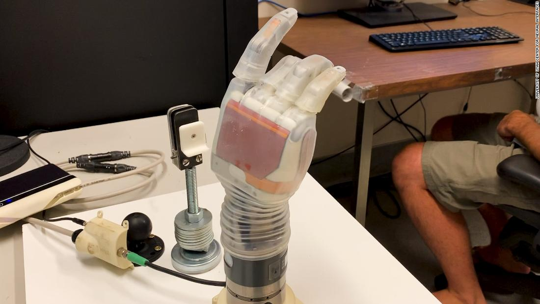 Amputee can feel objects again with prosthetic arm inspired by Luke Skywalker