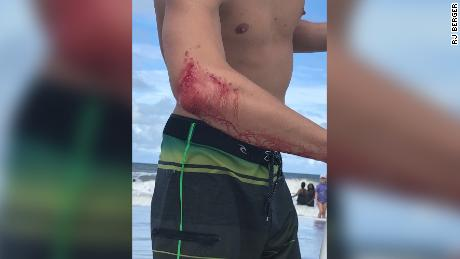 Professional surfer Frank O'Rourke shows off the bite mark on his arm.