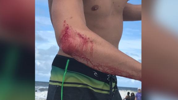Professional surfer Frank O'Rourke was bitten by a shark in the waters off Jacksonville Beach Pier Saturday.