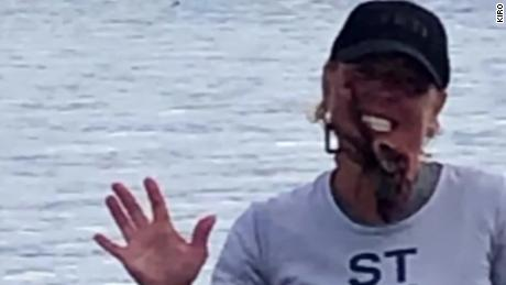 Woman bitten by octopus while posing for picture