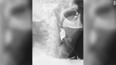 The X-ray showed a semicircular object lying across the man's vocal cords.