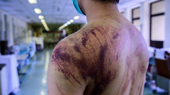 Calvin So, 23, a resident of Yuen Long, a Hong Kong town near the border with mainland China, shows his wounds and bruises on July 24, 2019, after he was assaulted on his way home by a gang of men.