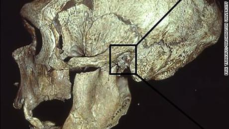 "The La Chapelle-aux-Saints Neandertal skull, with the external auditory exostoses (""swimmer's ear"" growths) in the left canal indicated. CREDIT Erik Trinkaus/Washington University"