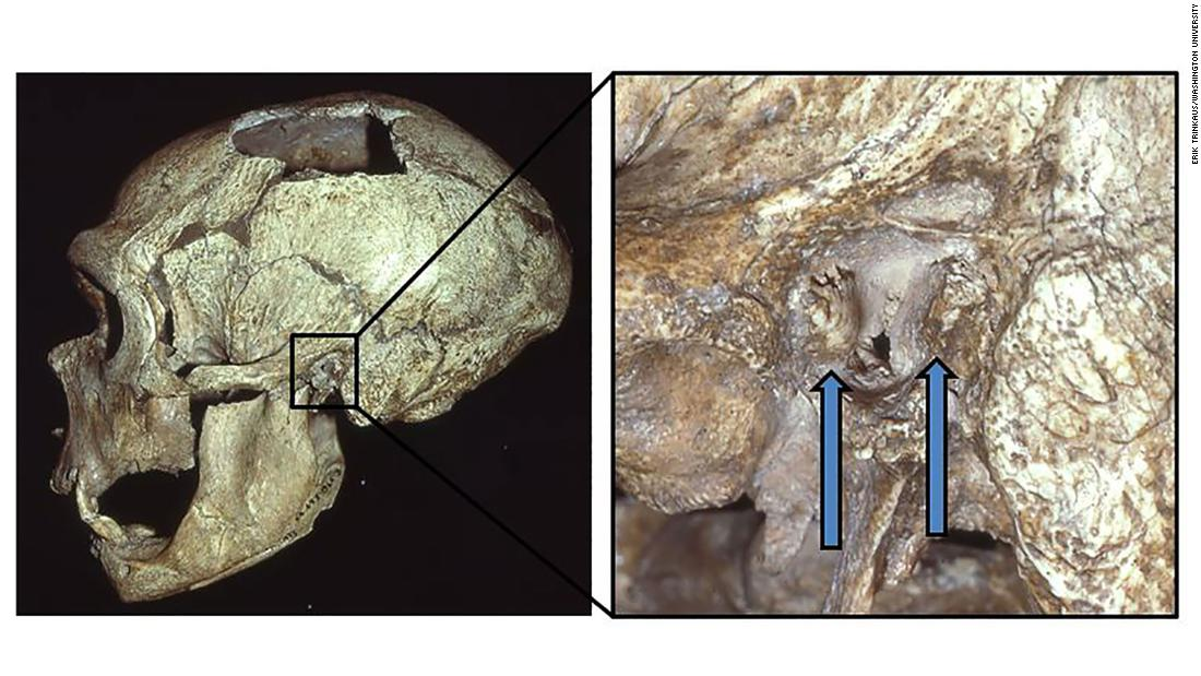 "The La Chapelle-aux-Saints Neanderthal skull shows signs of external auditory exostoses, known as ""surfer's ear"" growths, in the left canal."