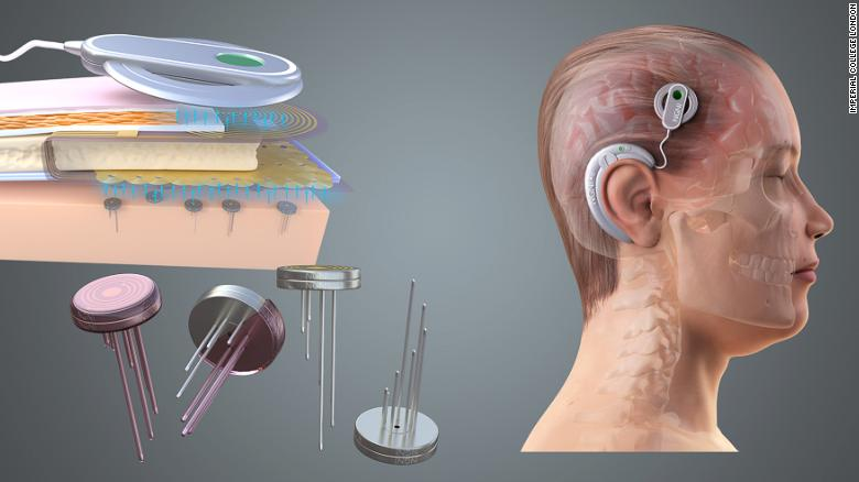 Brain implants could give governments and companies power to read your mind, scientists warn