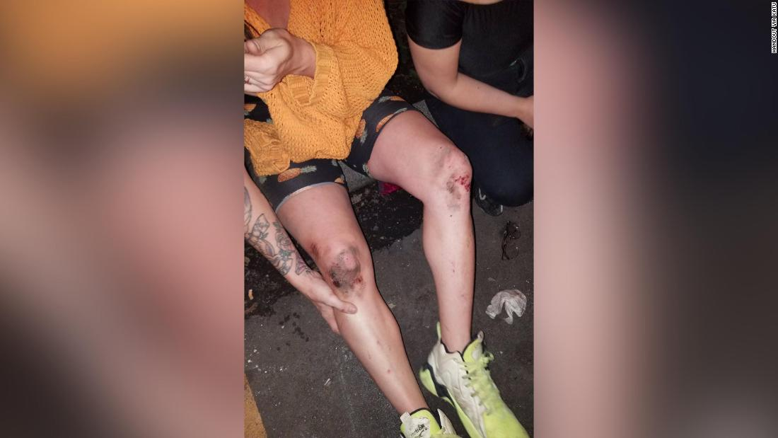 A transgender woman was attacked in Portland. Police are investigating the incident as a possible bias crime