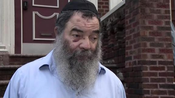 Rabbi Avraham Gopin was left with bruises, missing teeth and a broken nose after he was attacked in a Brooklyn park.