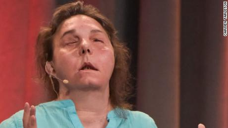 Her face transplant is failing.  But Carmen Tarleton has not lost her optimism