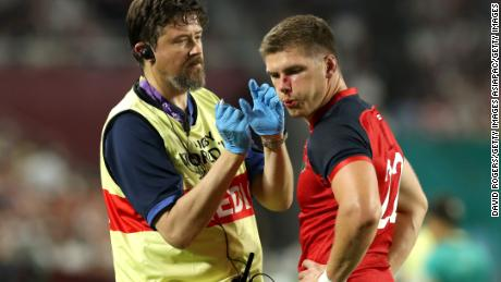 England's Owen Farrell receives medical treatment after a horror tackle.