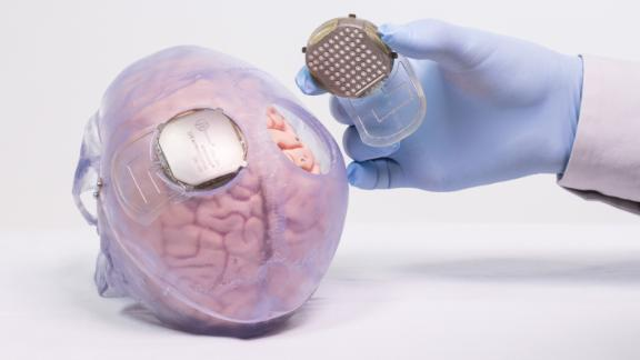 Recording devices were implanted on either side of Thibault's head, between the skin and the brain.