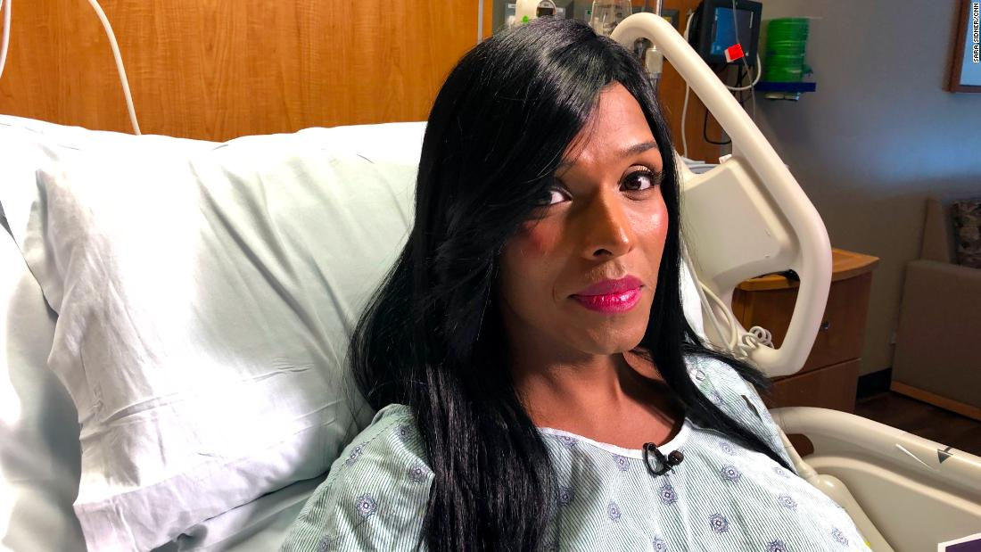 Transgender woman describes hate-filled attack that almost killed her