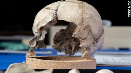 Kimmerle has reconstructed the skull and sent samples off for DNA testing.