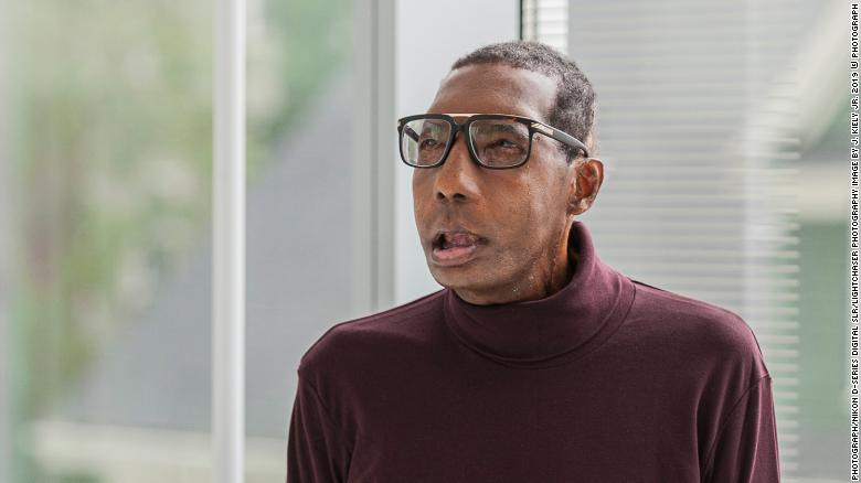 First African American Patient Receives Full Face Transplant