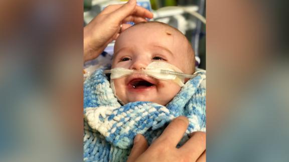 The family hopes to travel to the United States for surgery in April.