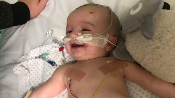 When 14-week-old baby Michael woke up from a medically induced coma, he recognized his dad and flashed an adorable smile.