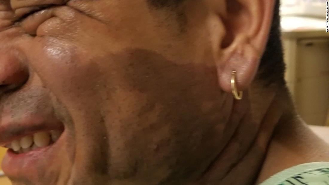 Πολίτης ΜΑΣ λέει ότι πέταξε οξύ στο πρόσωπό του, αφού είπε να πάει πίσω στη χώρα του