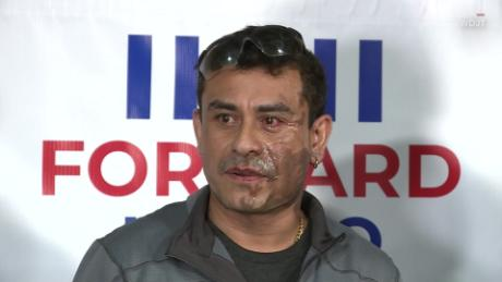 <b>A US citizen says he had acid thrown in his face after being told to go back to his country</b>