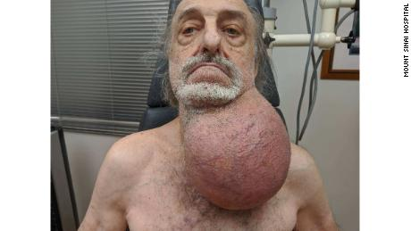 The man's tumor as seen before surgery.