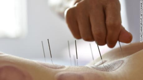 Acupuncture therapy in Hong Kong was linked to organ and tissue injuries, infection and other adverse reactions by a 2018 study.