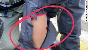A handout image from the Hong Kong Police shows an arrow in the calf of a Hong Kong police officer on Sunday.
