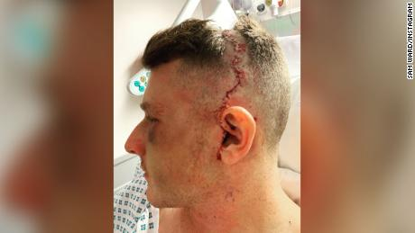 Ward had 31 staples removed from his head on Monday.