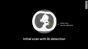 AI detection scan used for lung cancer malignancy prediction.