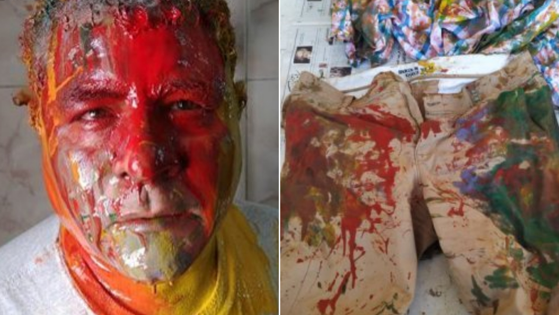 Egyptian human rights lawyer Gamal Eid says he was beaten and doused with paint