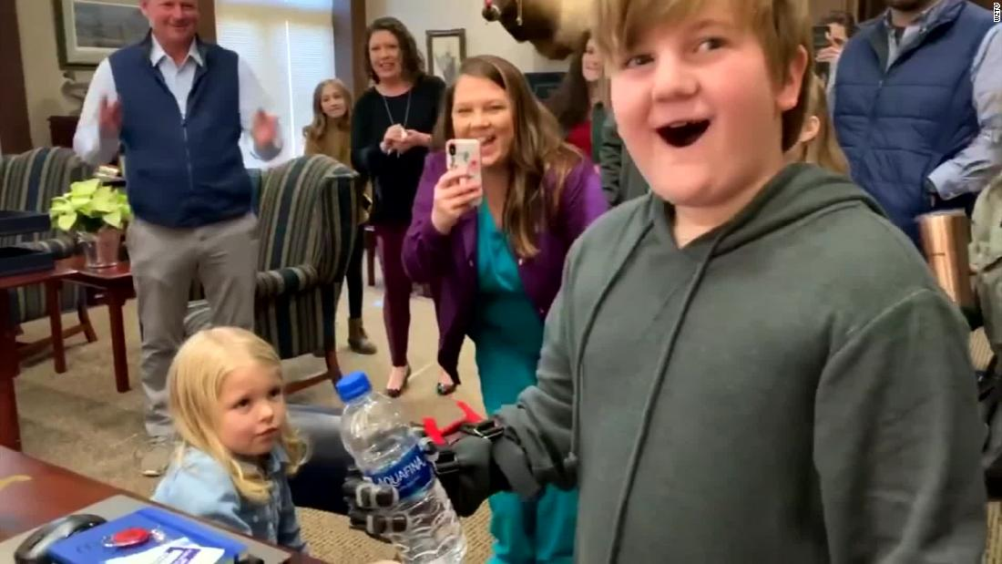 Boy gets 3D-printed hands, grips bottle for first time